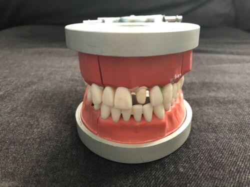 Vintage ACADENTAL ModuPro Dental Teeth Dentistry Mold Model Typodont #1