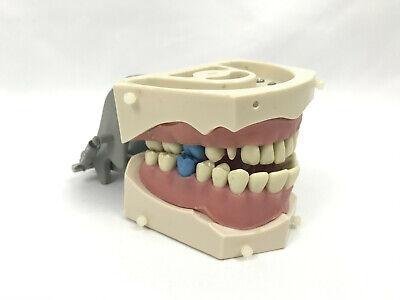 Original Columbia Dentoform Typodont Denture Sm-pvr-860 W 4 Blue Teeth