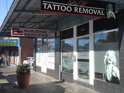 TATTOO REMOVAL SPECIALISTS