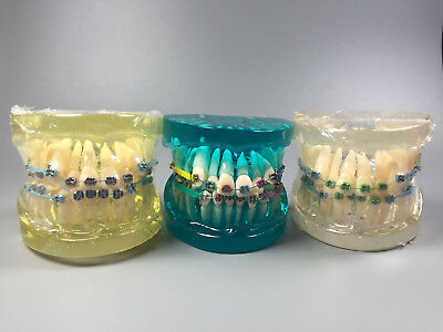 Dental Orthodontic Study Model Brackets Ligature Ties Elastic Chains Wires Metal