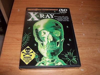 Drew's Famous Entertainment X-RAY DVD Frightening Images For Scare Party NEW](Halloween Famous Movies)