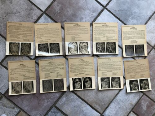 MEDICAL ANOMALY ODDITY Set of 10 Medical Stereoview Abdominal Cavity Plates