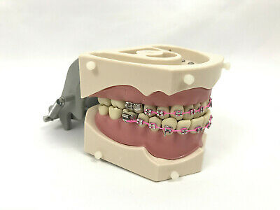 Original Columbia Dentoform Typodont Denture Sm-pvr-860 W Braces Installed