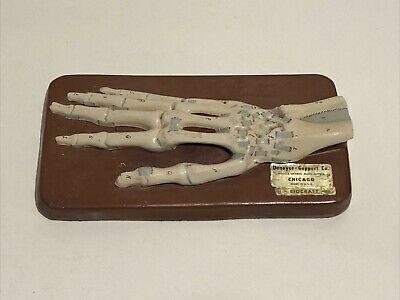 Denoyer Geppert Hand Ligament Anatomical Model Anatomy Vintage
