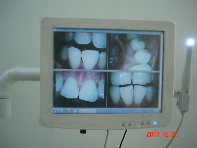 Dental Touch screen capacitive monitor with intraoral camera built in Intel (Best Touch Screen Monitor)