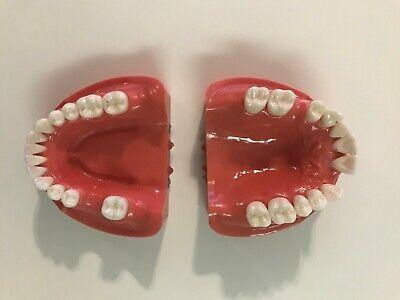 Kilgore Nissin Hard Gum Typodont For Prosthodontics