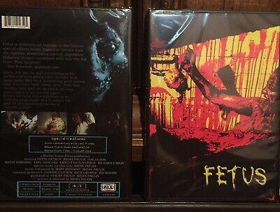 Fetus - Morbid Vision Films