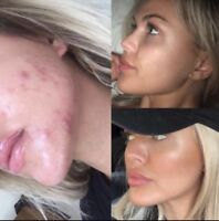 100$ microneedling et blanchiment dentaire
