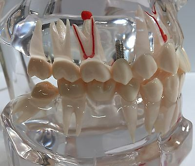 Oral Science Education-implant Rct Crown Bridge Perio Veneer And Oral Surgery