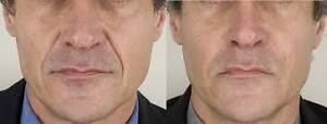 """Hair restoration"" up to 86% increased hair growth guaranteed West Island Greater Montréal image 5"