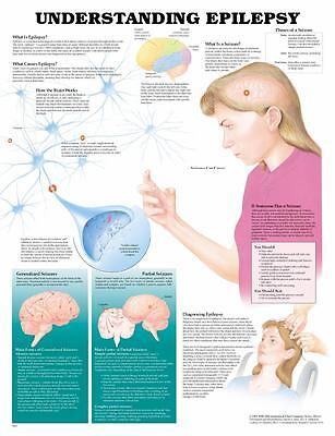 Understanding Epilepsy Seizures Anatomy Poster Anatomical Chart Company