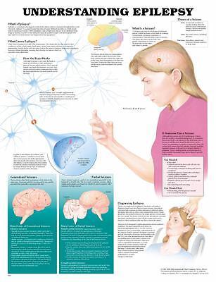 Understanding Epilepsy Seizures Anatomy Poster Anatomical Chart Company