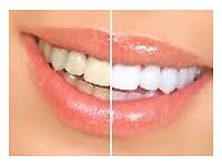 **Teeth Whitening**