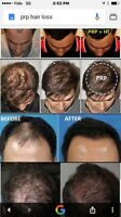 Hair loss ' PRP ' micro needling ' laser therapy