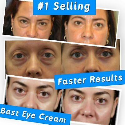 Best 100%  Under Eye Cream Remove Dark Circles Wrinkles Face Lines Puffy