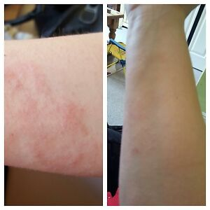 Fatigue, skin issues, psoriasis, eczema, or weight issues?