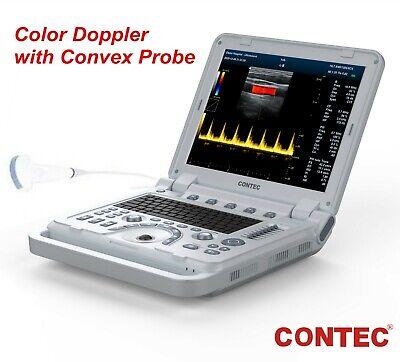 Portable Ultrasound Scanner Color Doppler Muscle Blood Vessel Cw Optional 3d 4d