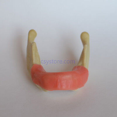 Dental Model 2023 01 - Lower Jaw Implant Practice Model With Gingiva