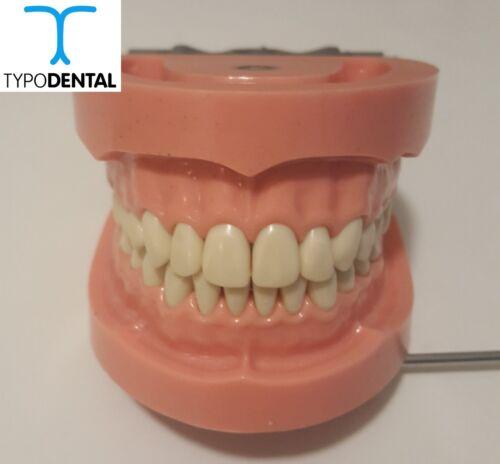 Typodont Dental Model TRM263Hard Gingiva compatible with Articulator