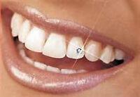Cours de bijoux dentaire et de blanchiment de dents !!!Formation