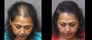 Solutions for Balding or thinning HAIR- Cheveux fins ou Calvitie West Island Greater Montréal image 1