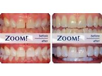 PROMOTION !!!LASER TEETH WHITENING Only £ 45