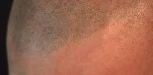 ARE YOU TIRED OF BEING BALD? Cornwall Ontario image 3