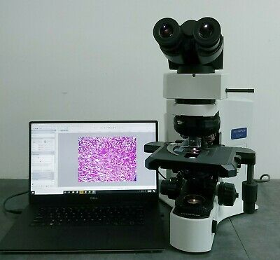 Olympus Microscope Bx41 With 2x Apo And Fluorite Objectives And 10 Mp Camera