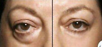Get rid of wrinkles and eye bags! INSTANTLY AGELESS®!!!