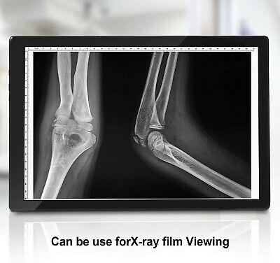 Negatoscope X-ray Ultra Slim Led Box X-ray Film Viewer