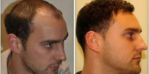 """Hair restoration"" up to 86% increased hair growth guaranteed West Island Greater Montréal image 3"