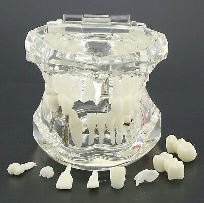 Dental Typodont Implant Study Analysis Demo Teeth Disease Model With Restoration