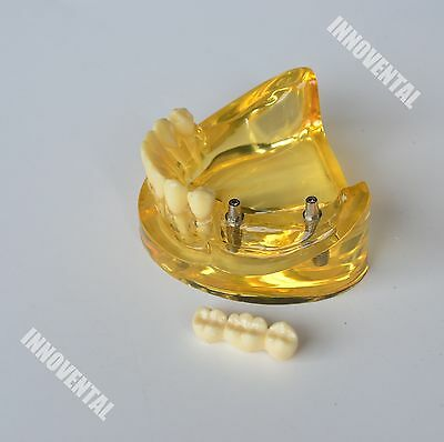 Dental Model 2011 01 - Lower Jaw Implant Model