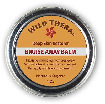Concentrated Bruise Remedy  Healing Bruise Cream With Arnica And Turmeric