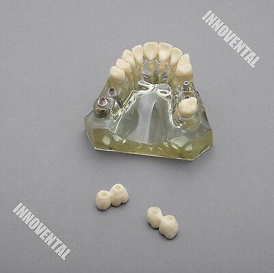 Dental Model 2010 02 - Upper Jaw Implant Model With Bridge