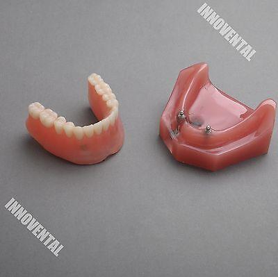 Dental Model 6007 01 - Overdenture Inferior With 2 Implant Demo Model