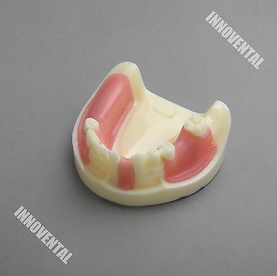 Dental Model 2004 01 - Lower Jaw Implant Practice Model With Gingiva