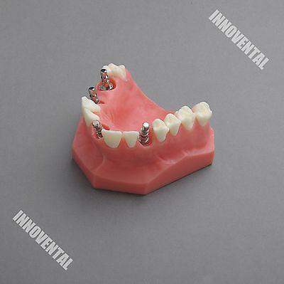 Dental Model 2012 01 - Upper Jaw Implant Model Red