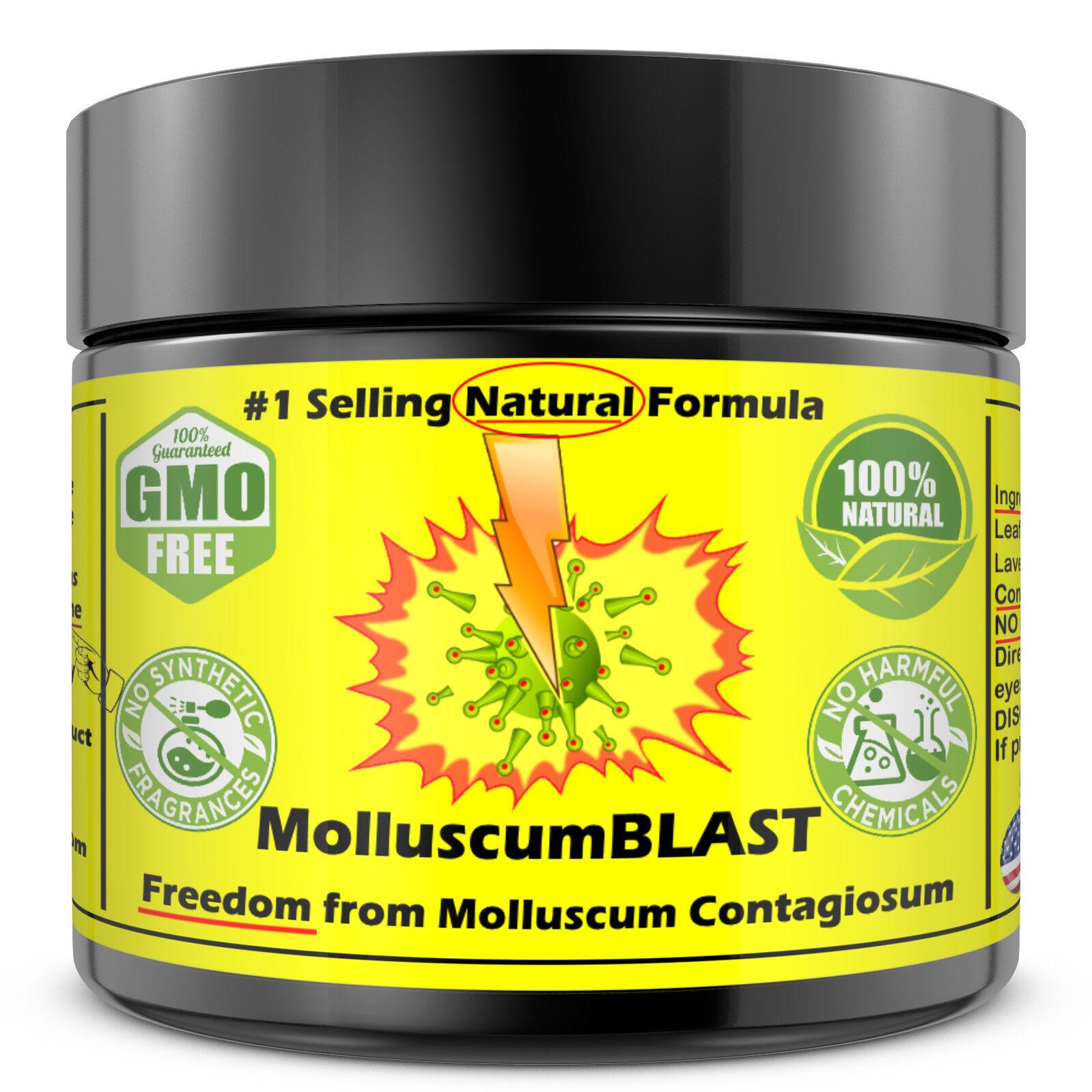 Molluscum Contagiosum Treatment Cream LARGE 60 ml Kids Adults 100% SAFE &NATURAL