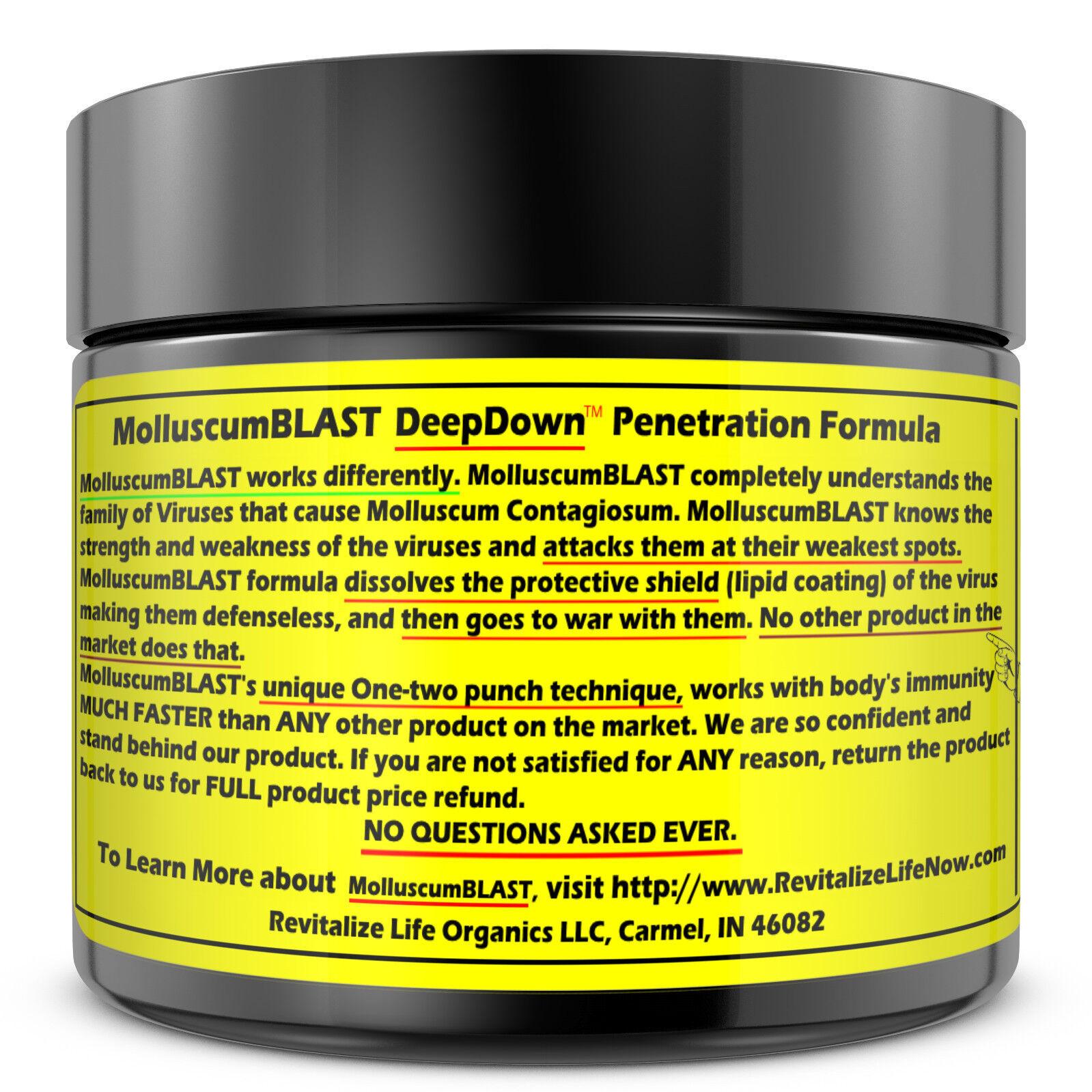 Molluscum Contagiosum Treatment Cream LARGE 60 ml Kids Adults 100% SAFE &NATURAL 1