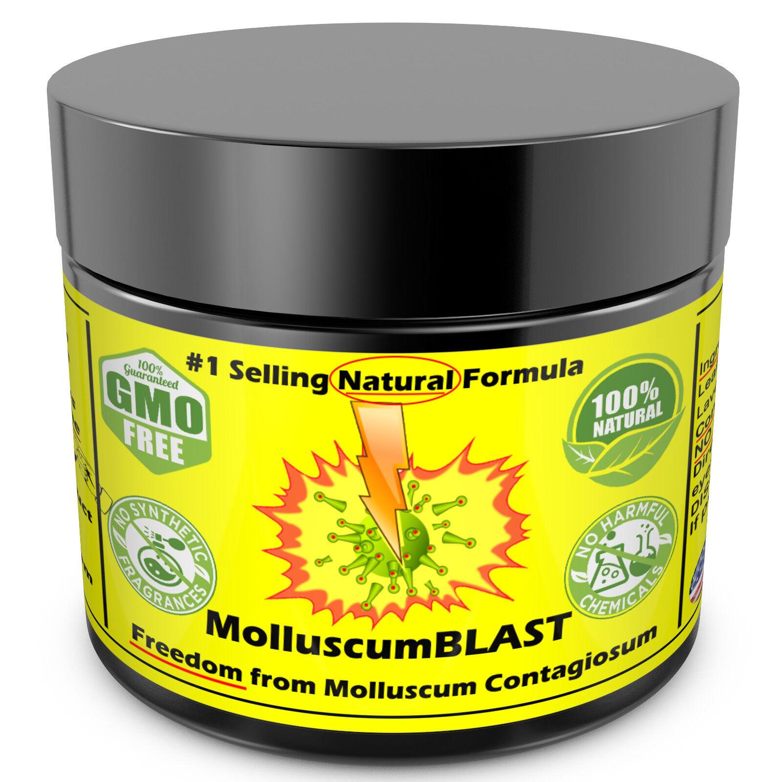 Molluscum Contagiosum Treatment Cream LARGE 60 ml Kids Adults 100% SAFE &NATURAL 3