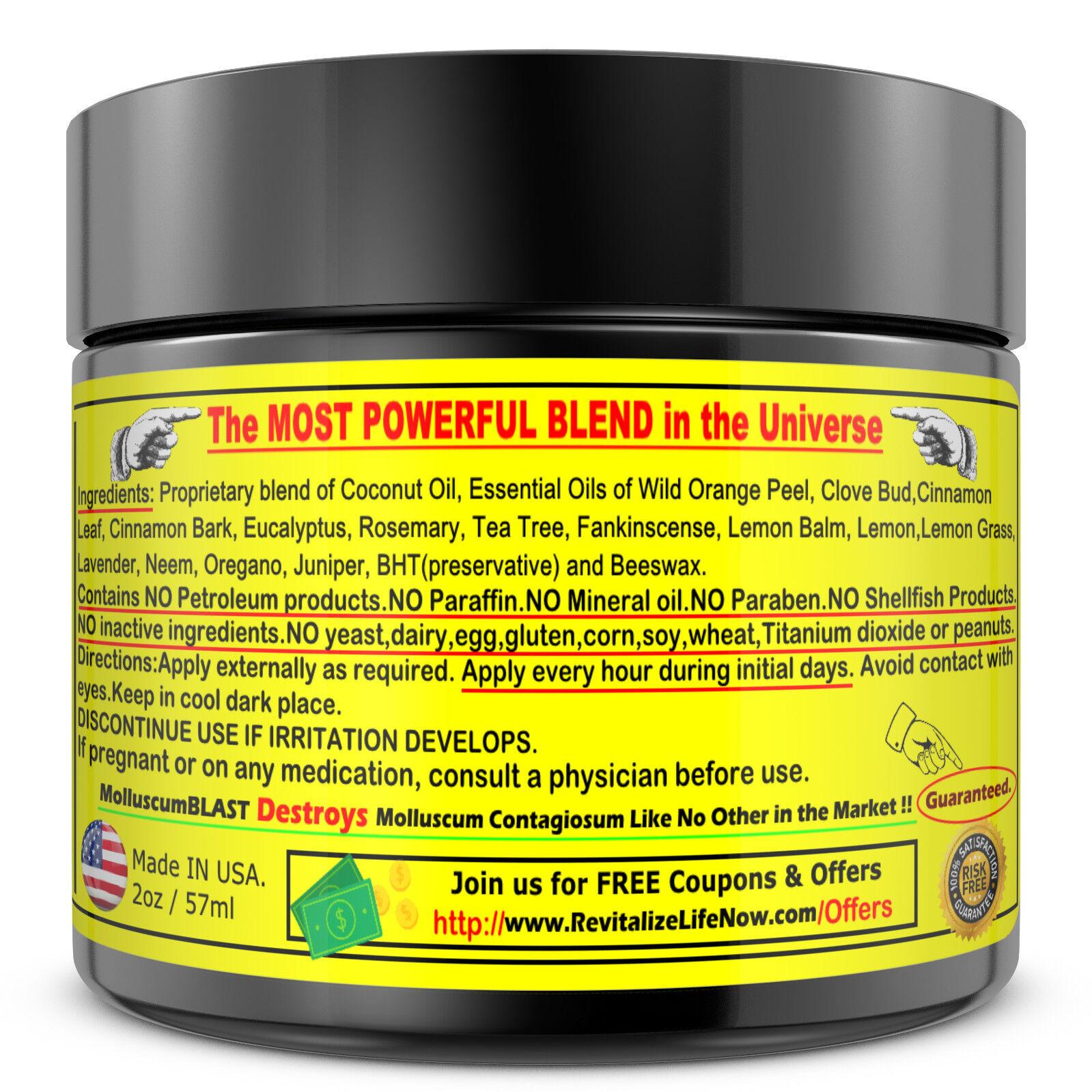 Molluscum Contagiosum Treatment Cream LARGE 60 ml Kids Adults 100% SAFE &NATURAL 2
