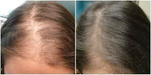"""Hair restoration"" up to 86% increased hair growth guaranteed West Island Greater Montréal image 2"