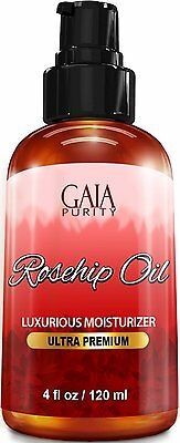 Rosehip Oil, Large 4oz - All Natural Best Moisturizer for Face Hair &