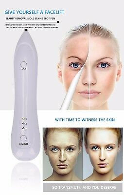 Mole Eraser Spot Pen Removal Sweep Beauty Tattoo Laser Electric Ion Freckles New