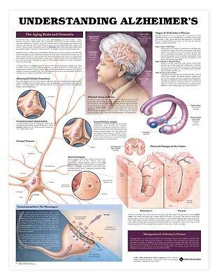 Understanding Alzheimers Neurology Anatomy Poster Anatomical Chart Company