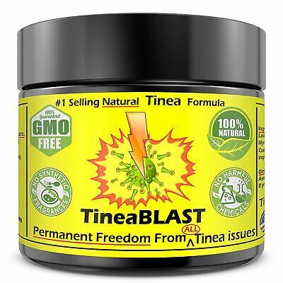 Tinea Versicolor Antifungal Cream NATURAL Tinea Treatment Cream 100ST RELIEF