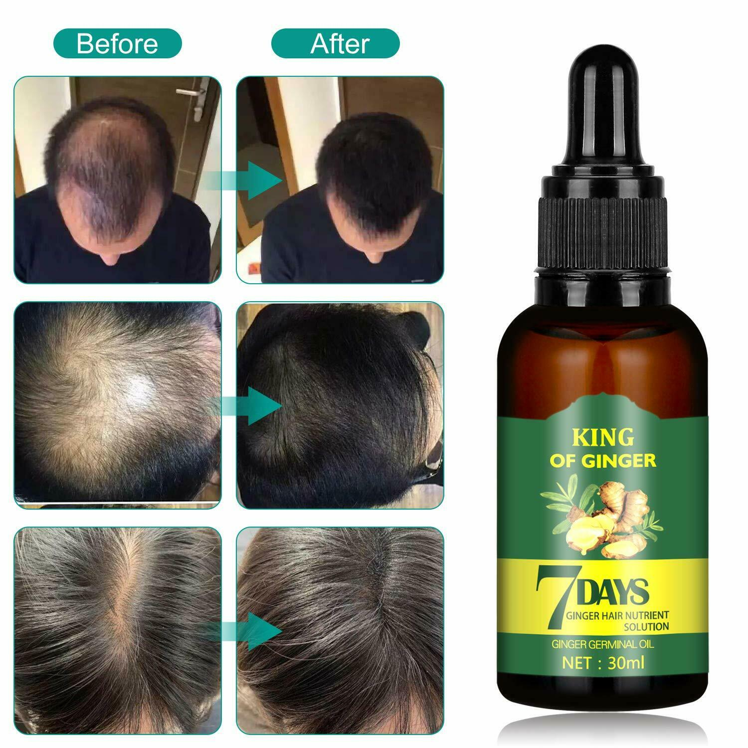 Regrow 7 Day Ginger Germinal Hair Growth Serum Loss Treatment Oil 30ML Hair Care & Styling