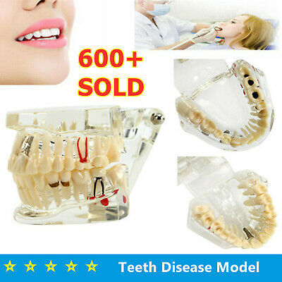 Dental Fake Teeth Study Model Implant Disease Education Shade Guide Teach Analy