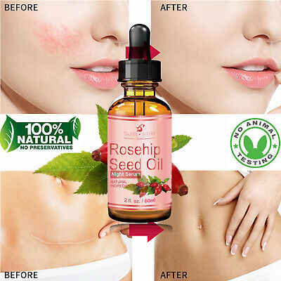 2oz Swan Star 100% Rosehip Oil Pure Organic Rose Hip Seed Oil Cold Pressed 60ml